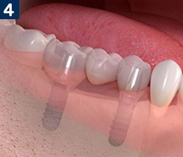 Dental Implants To Replace Multiple Teeth
