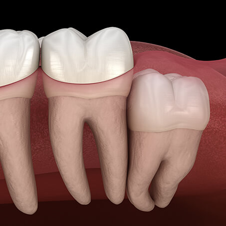 Wisdom Teeth Impactions